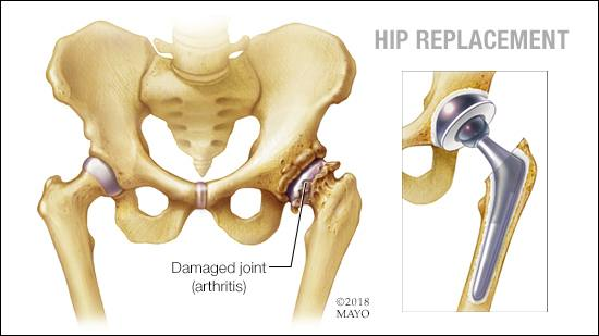 hip-replacements